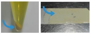 cristalúria cálculso urinarios
