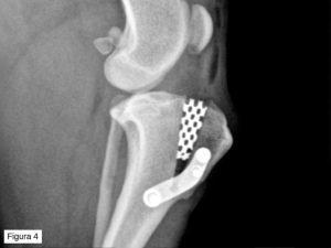 Figura-4_Josep-de-la-Fuente_rotura-ligamento-cruzado-anterior-josep-de-la-fuente