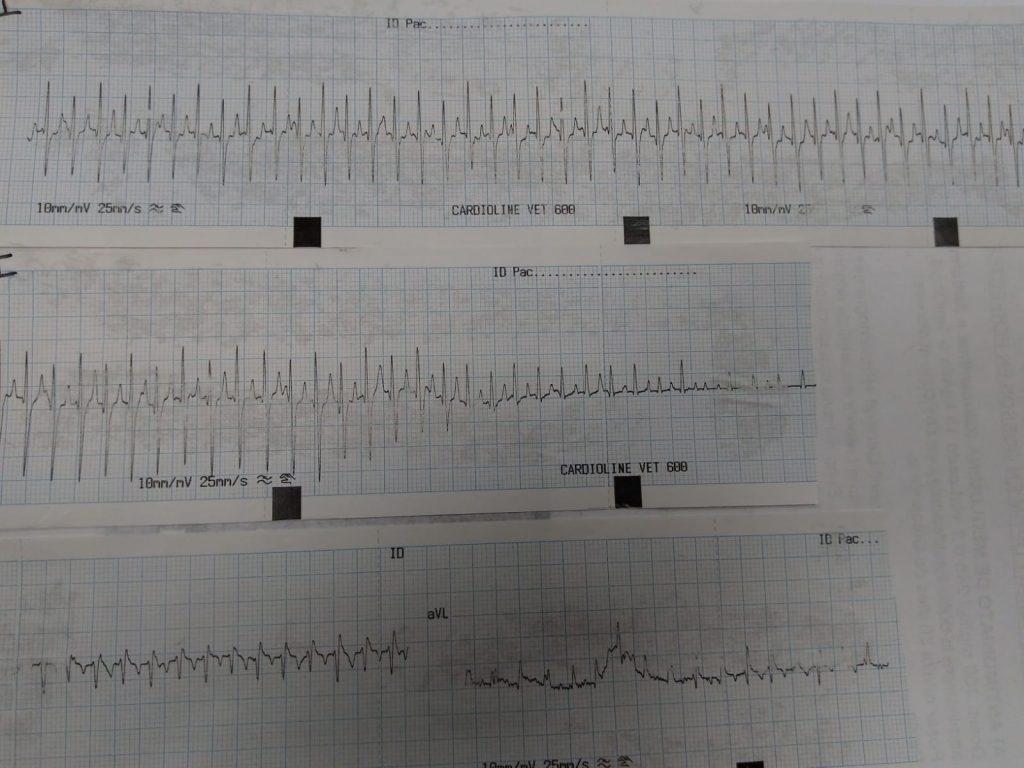 Arítmia cardíaca
